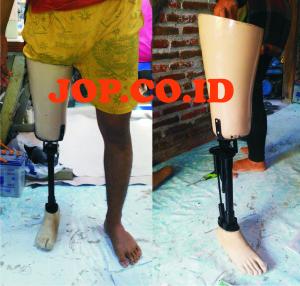 kaki palsu atas lutut dengan konektor sendi